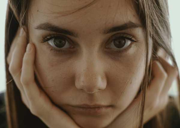 Selain Jerawat, Ini Masalah Kulit yang Sering Menyerang Remaja