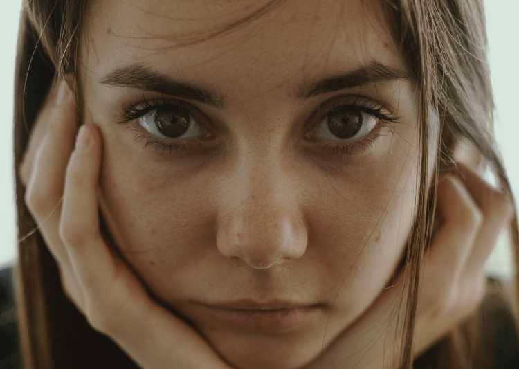 Selain Jerawat Ini Masalah Kulit yang Sering Menyerang Remaja