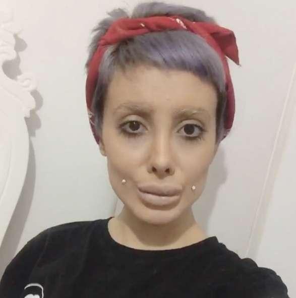 Wajah Zombie karena Operasi Mirip Angelina Jolie Ternyata Hoax