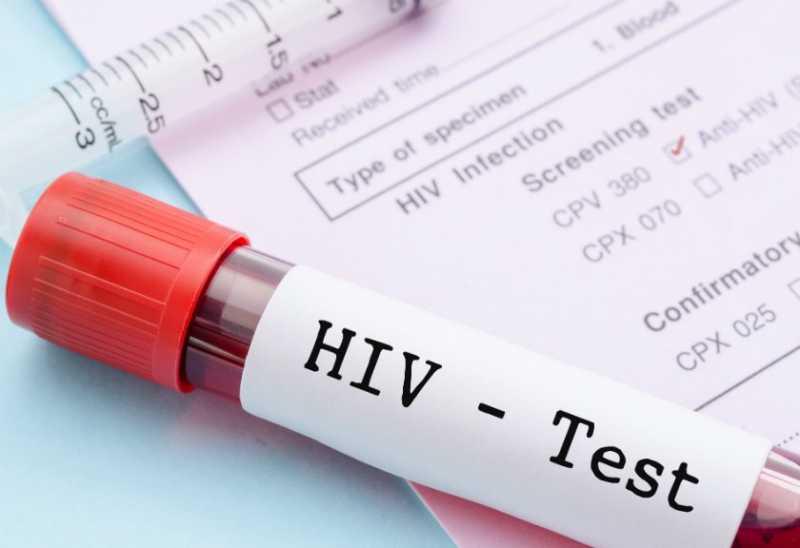 Puluhan Ibu Hamil Situbondo Positif Terinfeksi Virus HIV