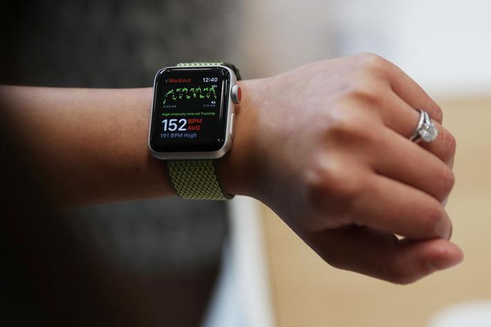 Hebat! Apple Watch Selamatkan Nyawa Pengguna dari Kecelakaan Fatal