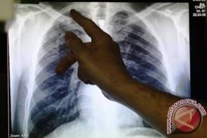 Beda Benjolan Pertanda Kanker Getah Bening dan TBC - Uzone