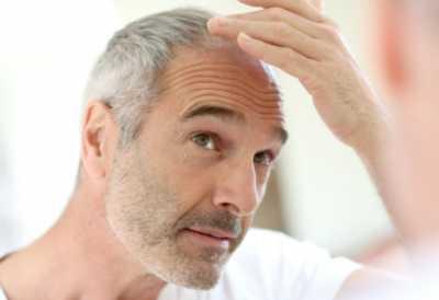 Punya Rambut Uban Diusia Muda? Begini Cara Mengatasinya