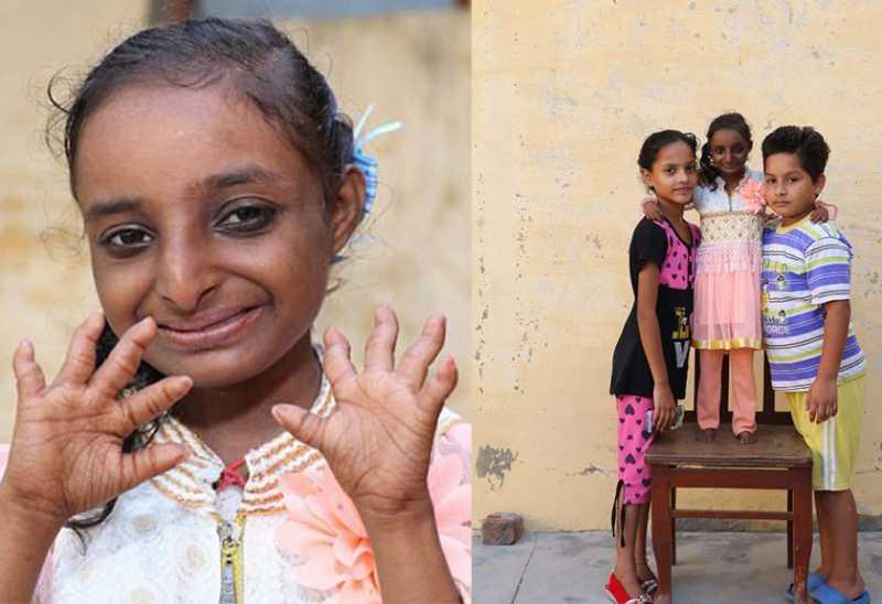 Tidak Bisa Tumbuh Dewasa, Wanita India Ini Dijuluki Gadis Tikus