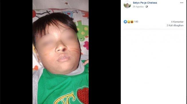Viral Bocah Asal Solo Mimisan Sebulan, Ternyata Gara-gara Lintah!