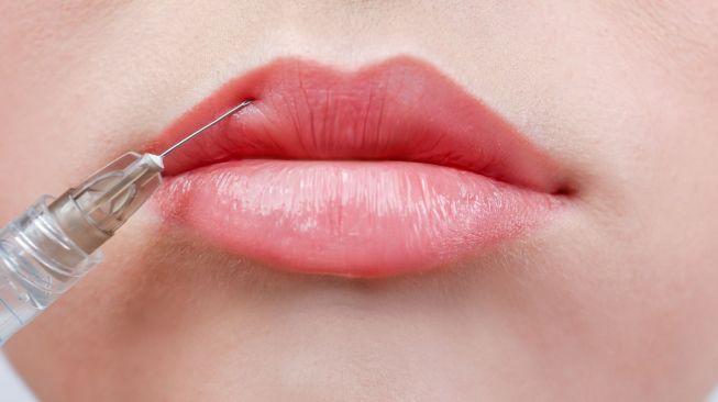 Duh, Suntik Filler Bikin Wanita Ini Hampir Kehilangan Bibir