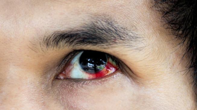 Idap Penyakit Langka, Lelaki Ini Keluarkan Air Mata Darah