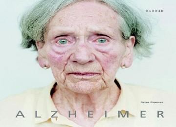 Kondisi Kulit Kemerahan Bisa Berisiko Alzheimer