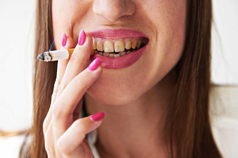 Kenapa Muncul Bercak Cokelat Di Gigi? Bagaimana Menghilangkannya?