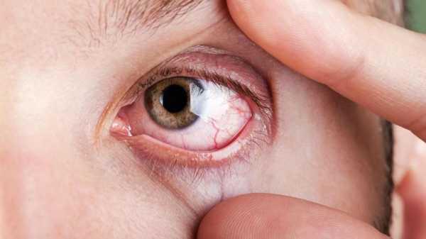 Cara Obati Radang Mata Akibat Kabut Asap Karhutla