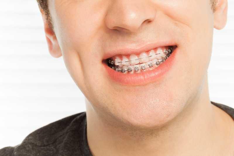 Cara Benar Merawat Gigi untuk Pengguna Kawat Gigi
