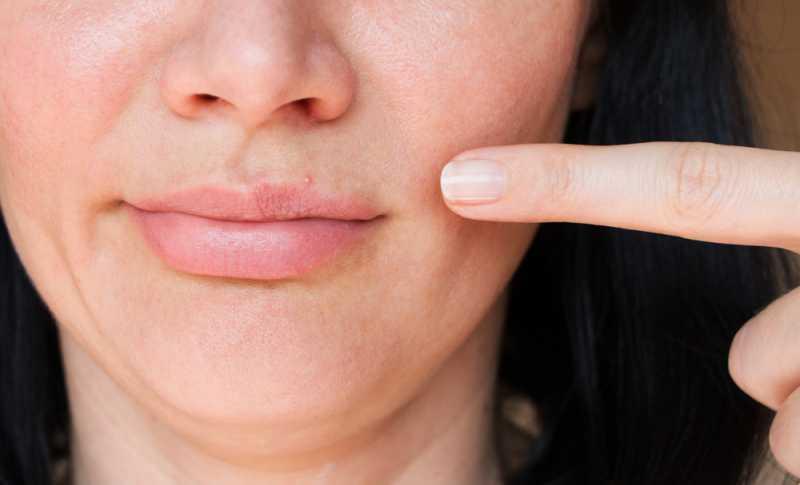 5 Kiat Mujarab untuk Membantu Mengatasi Jerawat di Bibir