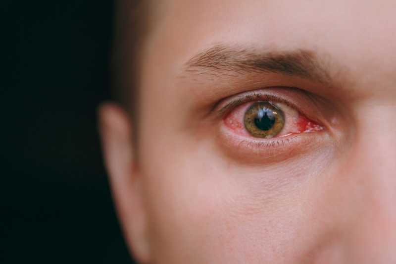 6 Penyebab Umum Mata Memerah Saat Pakai Softlens