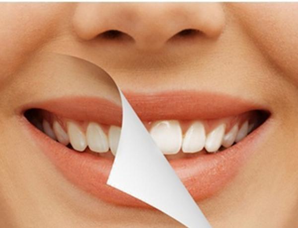 Memutihkan Gigi Ternyata Berpotensi Merusak Kesehatan Kulit dan Mata