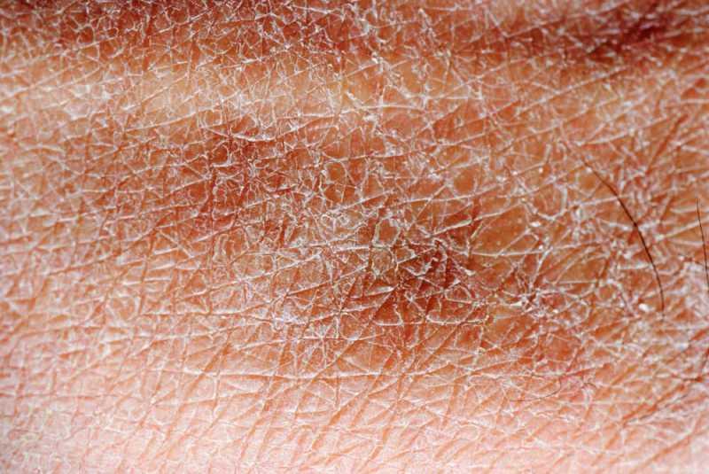 Image result for kulit kering dan bersisik