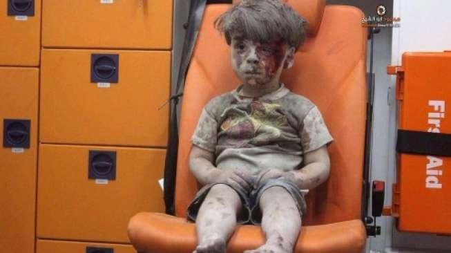 Ingat Bocah Suriah yang Berlumur Darah? Inilah Dia Kini