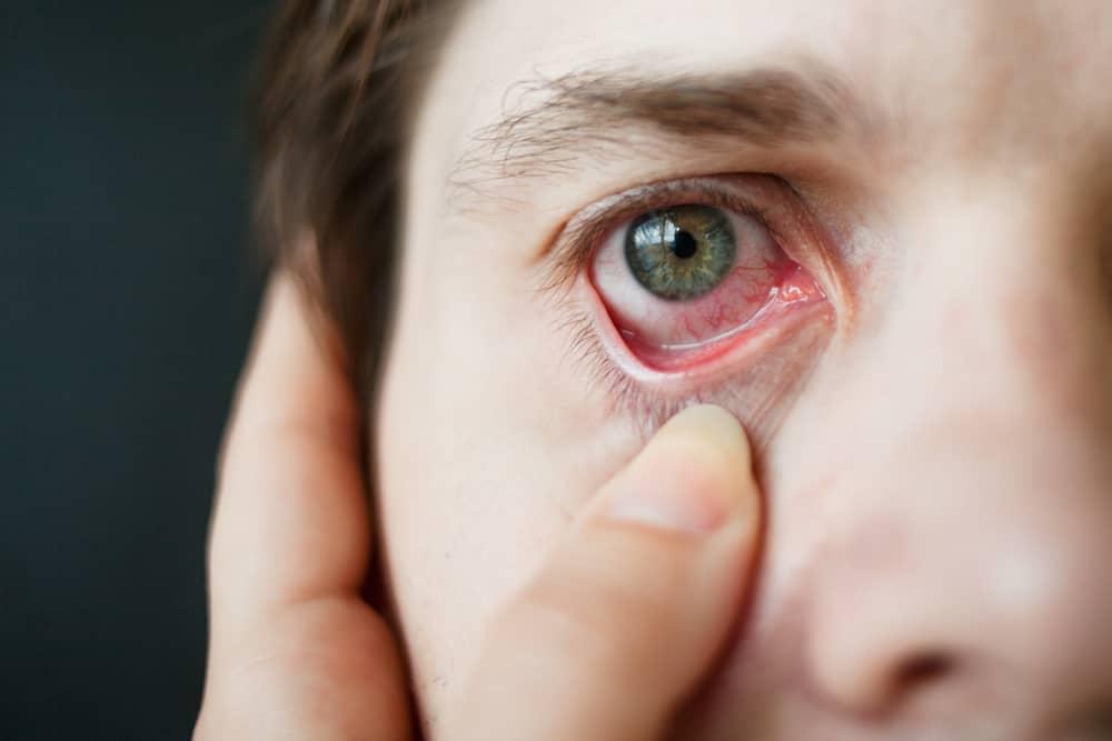 Hati-hati, Anda Juga Bisa Terkena Penyakit Kelamin di Mata! Kok Bisa?