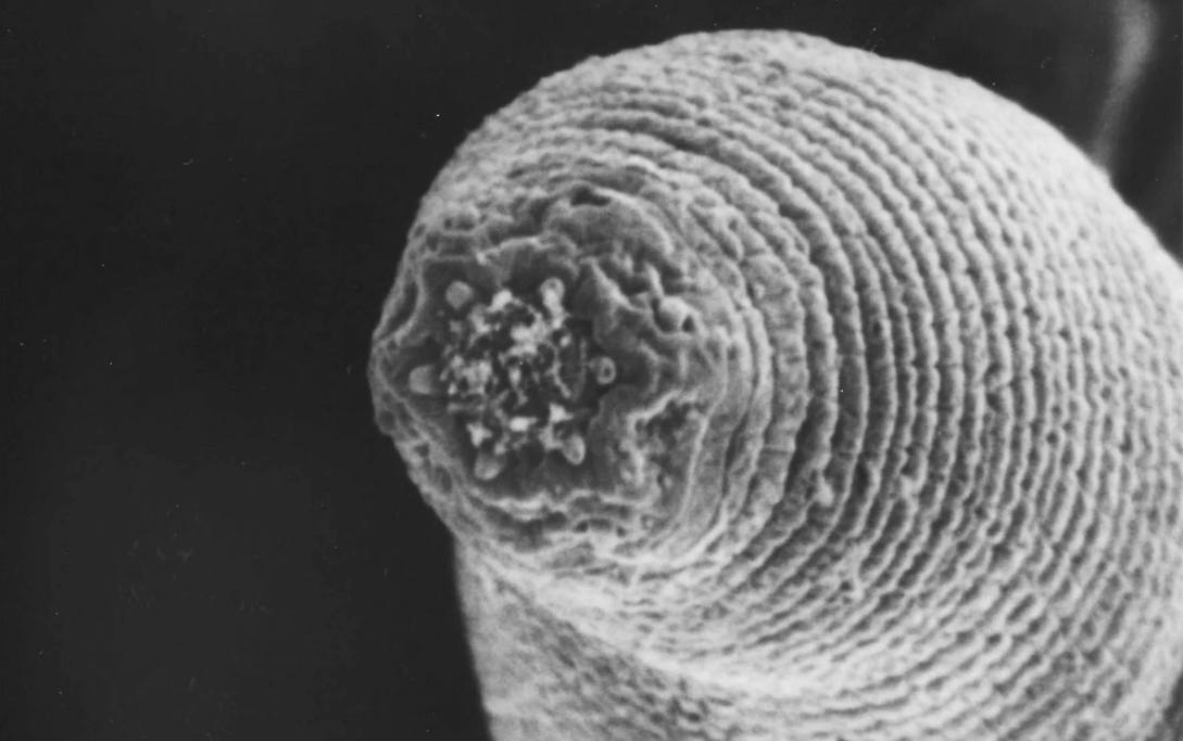 Ilmuwan Princeton Temukan Cacing dari