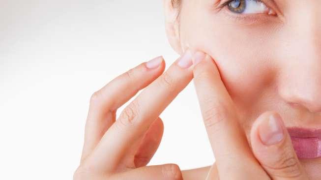 Harapan Baru : Obati Jerawat Pakai Vaksin