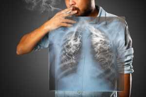 Dampak Merokok pada Pasien PPOK