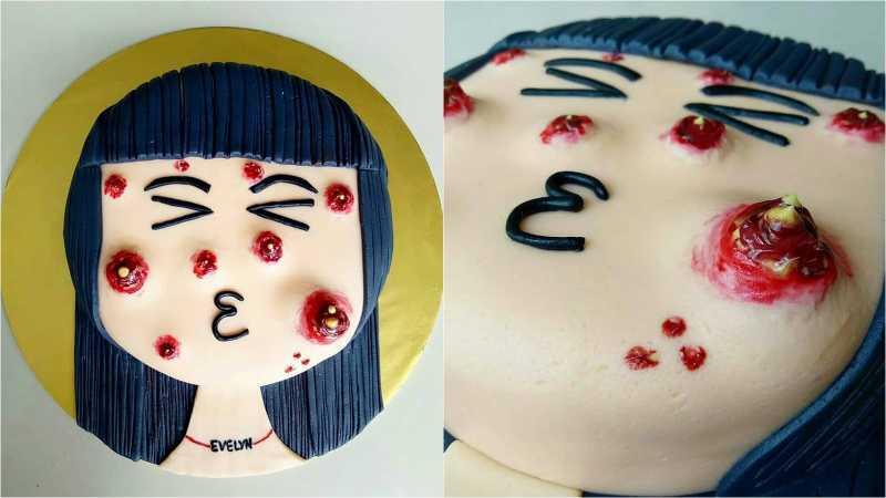 Kini Ada Kue Ulang Tahun yang Ditumbuhi Jerawat, Berani Makan?